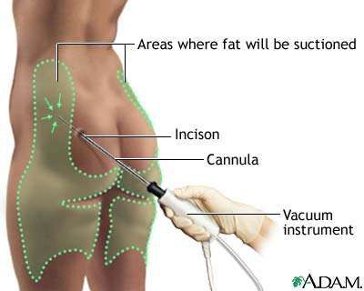 liposuction diagram